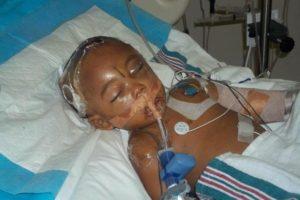 Fotografía de un niño víctima de abuso infantil. Cortesía de facesofchildabuse.org