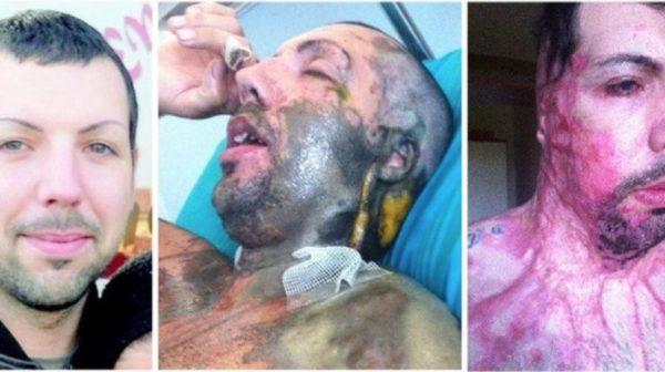William Pezzullo, otra víctima masculina de ataque con ácido en Europa.